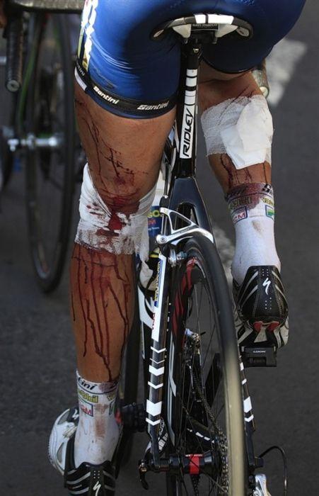 Авто журналистов сбило велогонщиков на Тур де Франс