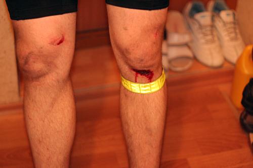 Велосипедные травмы
