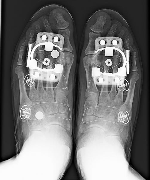 Как выглядят велосипедные элементы в рентгеновском свете