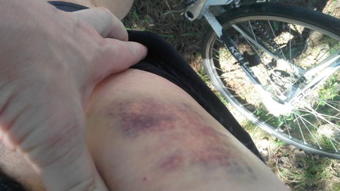 велосипедная травма, синяк размером с кулак